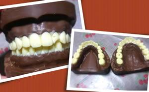 Estudante de odontologia faz dentadura de chocolate