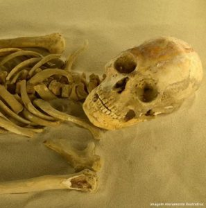 esqueleto dente do siso